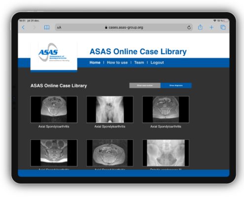 ASAS Online Case Library on an iPad.